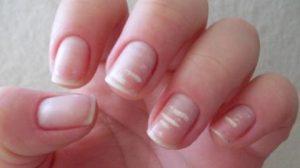 Striature bianche su unghie
